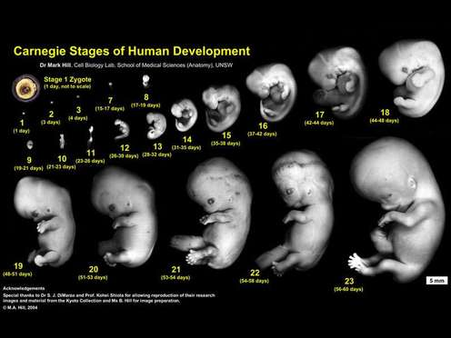The prenatal stage that lasts from 2 months post conception until birth.  This stage is characterized by the continued growth of the fetus and a  remarkable ...
